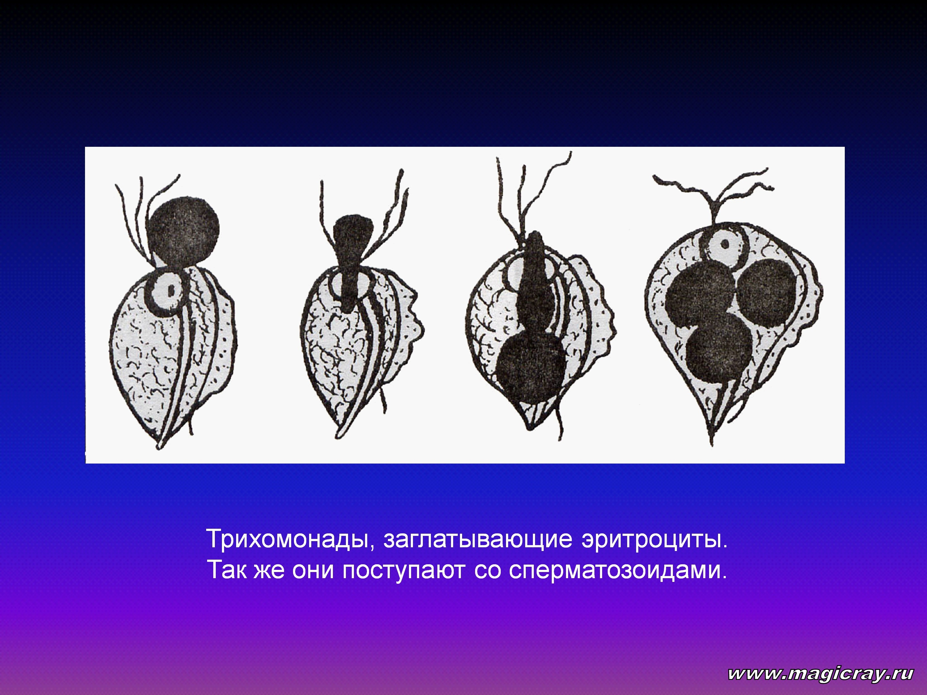 паразиты в человеке избавиться