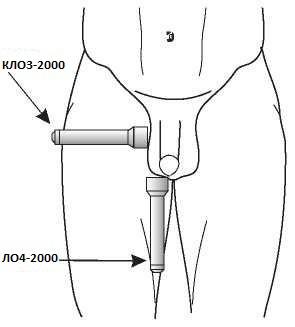 Магнитный лазер на область предстательной железы